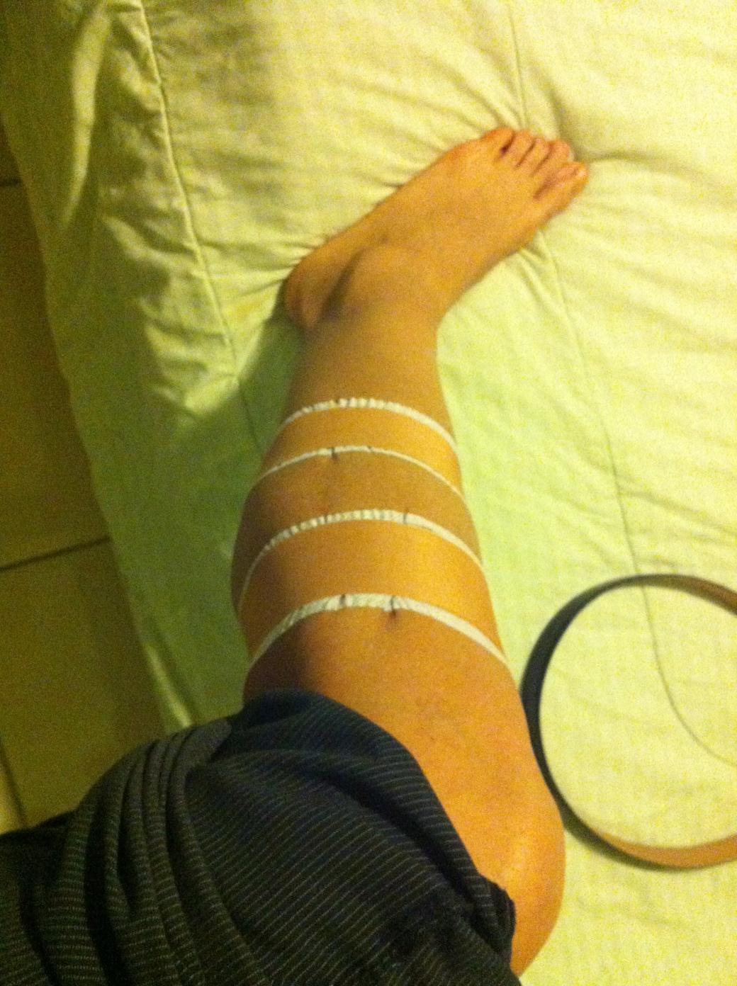 Algunas sesiones de fisioterapia fueron necesaria para ayudar al cuerpo.